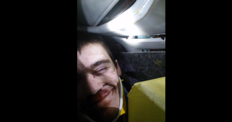 Guy Takes Video Selfie while being Cut from Car by Jaws of Life